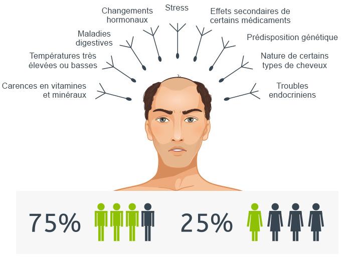 Calvitie perte de cheveux Alopécie androgénénitique DHT