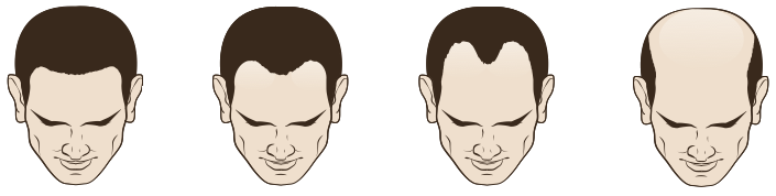 Calvitie perte de cheveux