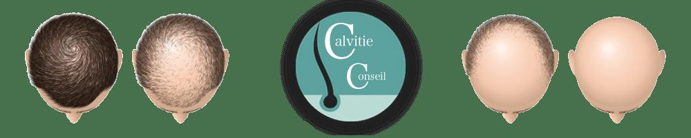Calvitie conseil