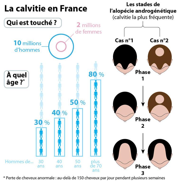infographie-calvitie