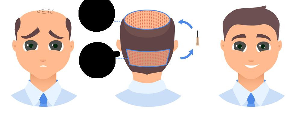 Calvitie Conseil Comment Lutter Contre L Alopecie Solution